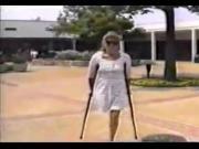 RAK amputee Debbie