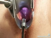 Mature fat pussy Ruzena gyno speculum bizzare clinic