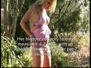 Ana didovic bigbladder2