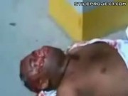 Wounded Black Man Coughs Up Blood