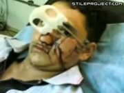 Guy's Face Impaled With Sharp Object