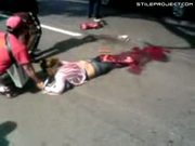 Womans legs run over by car, turned into mush, still alive!