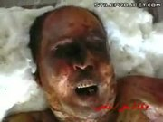 Iraqi Torture Victim - Messed Up Body & Hole In Head